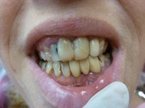 Badly decayed teeth