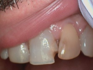Chipped tooth and discolored tooth (1)