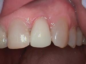 Repaired tooth with bonding and restored the other tooth within an hour with full ceramic crown using Cerec