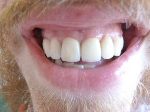 Restored with full ceramic crowns and implants